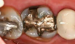 metal amalgam fillings